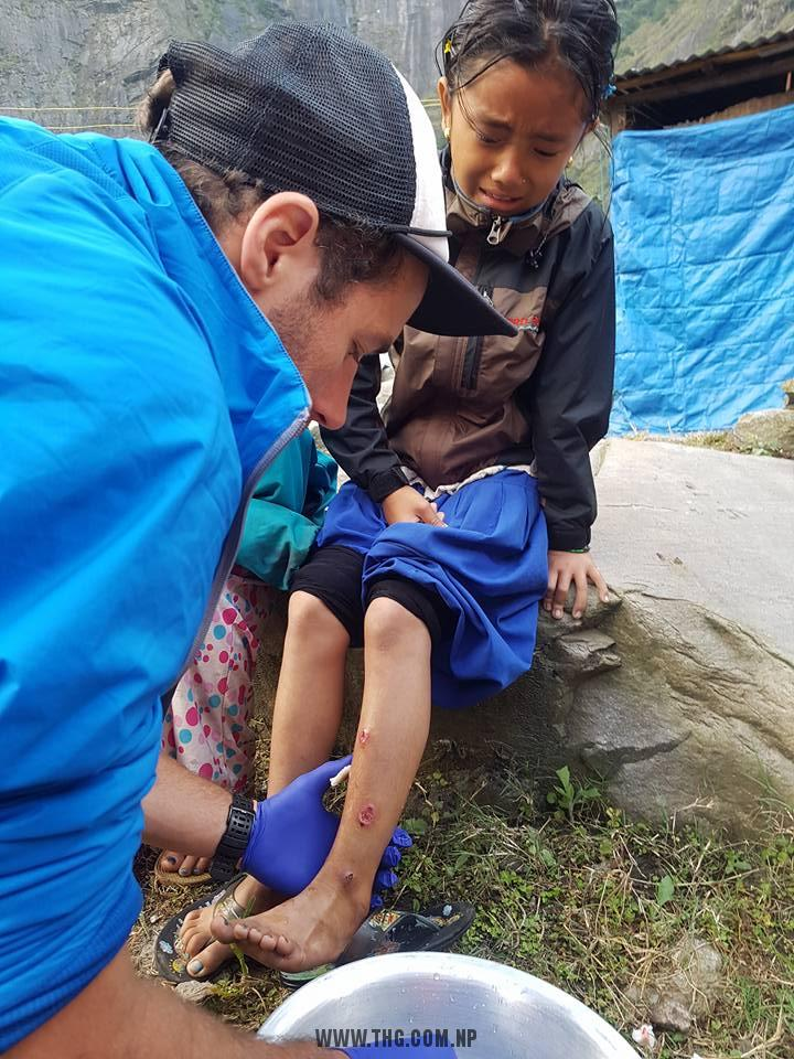 Dressing local kids by Medical Aid Mountaineering Autumn 2016